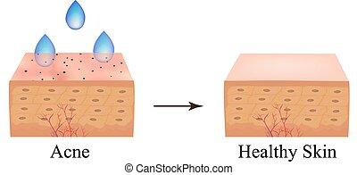 anatomique, acne., taches, illustration, peau, isolé,...