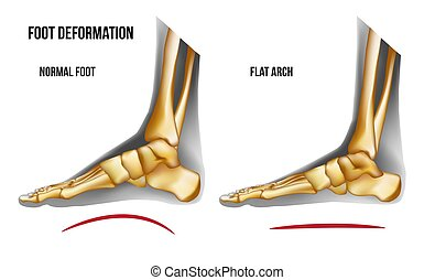 Anatomy flat foot arch medial view - Anatomy flat foot arch....