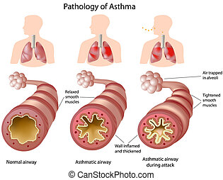 Anatomy of Asthma - Pathology of asthma with and without...