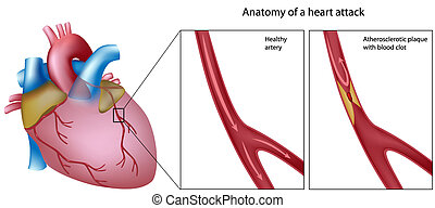 Anatomy of heart attack - Coronary artery with and without...