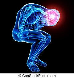 Anatomy of male brain pain on black
