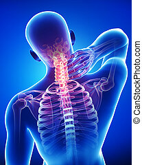 3d rendered illustration of male neck pain anatomy on blue