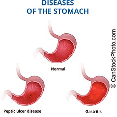 Anatomy of the human healthy and unhealthy stomach