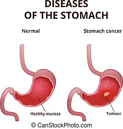 Medical poster with a detailed diagram of the structure from the inside of the stomach, digestive system diseases - canser