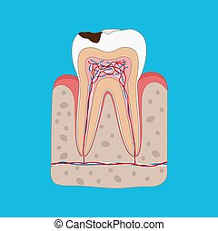 Anatomy of Unhealthy tooth with tooth decay isolated cross section. Medical dental poster illustration in flat design.