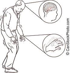andar, parkinson, sintomas, vetorial, ilustração, aold, homem, difícil