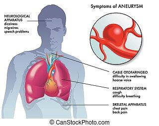 medical illustration of the main symptoms of aneurysm