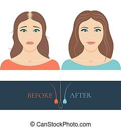 anf, femme, chauve, après, cheveux, traitement, avant