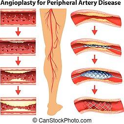 angioplasty, visande, sjukdom, diagram, pulsåder, periferisk