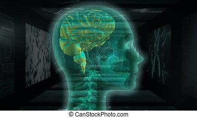 animation, cerveau, elle, balayage, mri