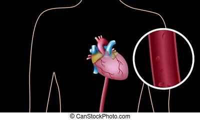 Animation of Cardiac catheterization procedure used to investigate coronary artery blocked by cholesterol plaque