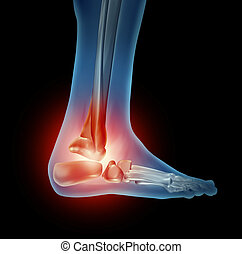 Ankle Foot Pain - Ankle foot pain with a skeleton of the ...
