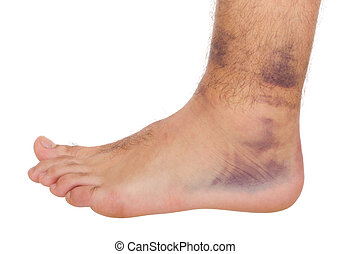 Ankle Sprain - young male with sprained ankle isolated on...