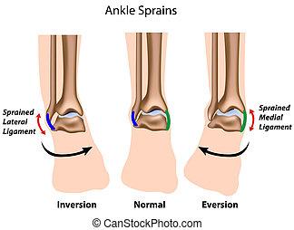 Ankle sprains,