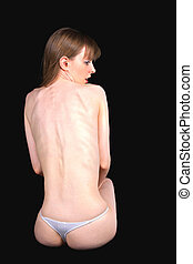 Anorexic girl - Sad young girl suffering from anorexia...