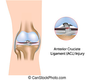 Torn Anterior Cruciate Ligament, a common sport injury, eps8