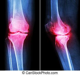 anterior, mostrar, subcondral, película, espaço, ), (, lateral, -, devido, degenerativo, conjunto, osteoartrite, joelho, espora, mudança, osteophyte, posterior, estreito, esclerose, raio x, vista