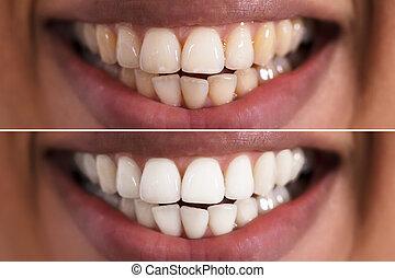 antes de, mulher, whitening, após, dentes