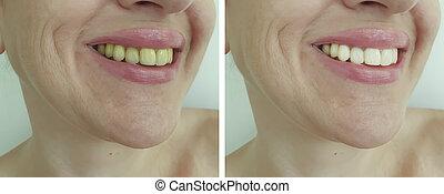 antes de, mulher, whitening, após, dentes, higiene