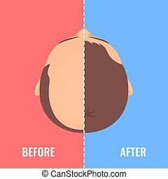 antes de, transplantation, homem, cabelo, balding, após
