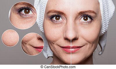 anti-aging, nő, folyamat, szépség, után, -, emelés, bánásmód, shots, bőr törődik, rögzít, boldog, arcápolás, before/after, megfiatalodás