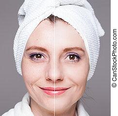 anti viejo, mujer, procedimientos, belleza, después, -, elevación, tratamiento, tiros, cuidado de la piel, apretar, feliz, facial, before/after, rejuvenecimiento
