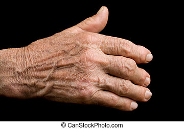 antigas, mão, com, artrite
