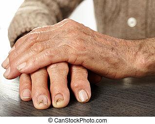 antigas, mãos, com, artritis