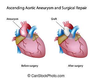 aortal, aneurysma, aufsteigend