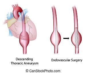 aortal, chirurgie, brust-, aneurysma