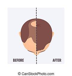 após, cabelo, homem, calvo, antes de, transplantation