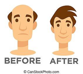 após, calvo, efeito, cabelo, transplantation, antes de, homem