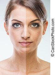 após, -, rosto, bronzeando, cirurgia, plástico, antes de