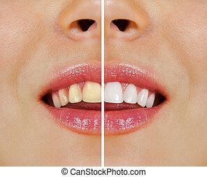 após, whitening, dentes, antes de