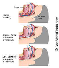 apnea, 打鼾, 睡眠, eps10