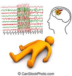 apoplectic, és, epileptic, ütés