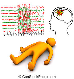 Apoplectic And Epileptic Stroke - Orange cartoon character...