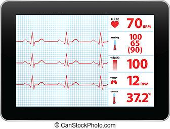 apparat, dataskærm, elektrokardiogram
