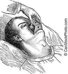 Application of a cone chloroform, vintage engraving. - ...