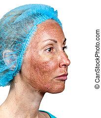 après, autour de, peler, loin, joue, chimique, condition, cosmetology., peau, brûlé, déchirure, début, sommet, tca., couche