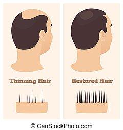 après, avant, homme, perte, traitement, cheveux, vue, côté
