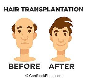 après, chauve, effet, cheveux, transplantation, avant, homme