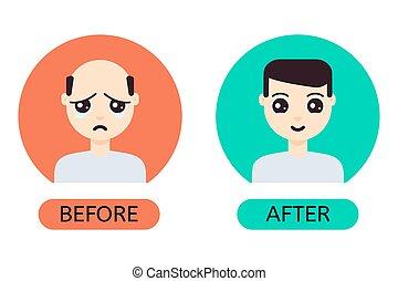 après, cheveux, transplantation, homme, dessin animé, avant