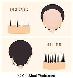 après, perte, avant, traitement, vue, homme, cheveux, sommet