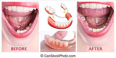 après, rééducation, inférieur, prothèse, dentaire, supérieur, traitement, avant