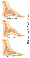 Arch of Foot. Set of flat foot, high arch. Rheumatoid...