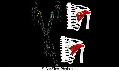 arm., grilletto, immagine, braccio, blade., muscle., fondo., nero, muscoli, spalla, profondo, infraspinatus, punti, dolore