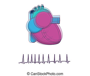 Arrhythmia. Illustration of heart beating quickly