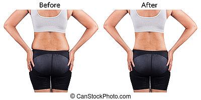 arrière, perte, poids, après, graisse, femmes
