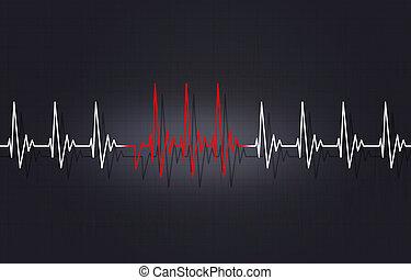 Arrythmia Irregular Heartbeat Illustration